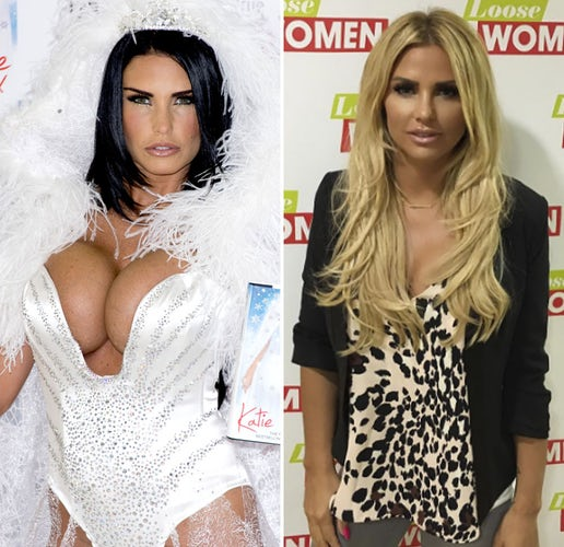 Katie price boob reduction