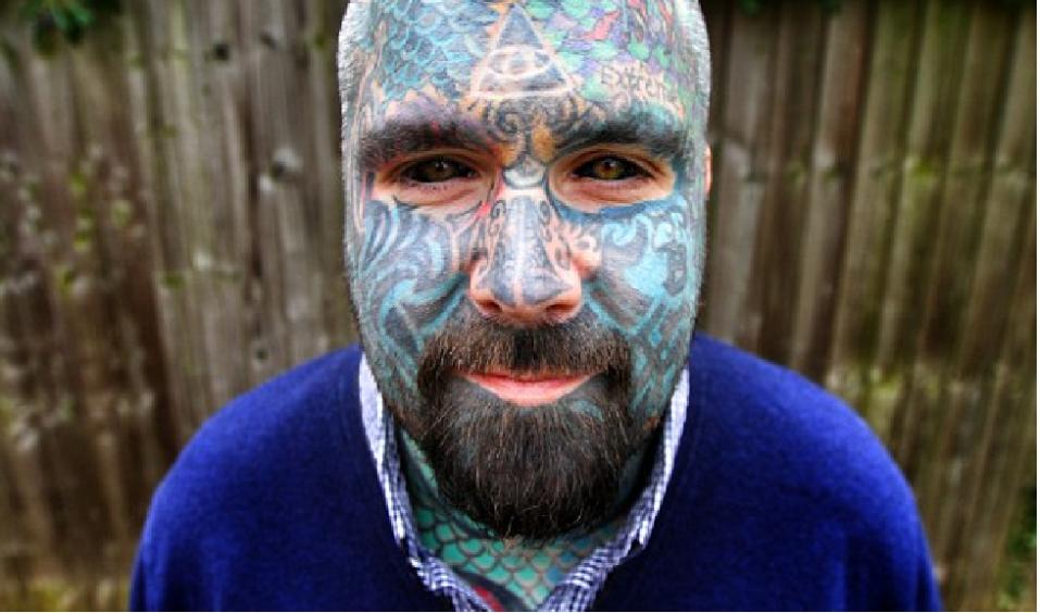 El Hombre Más Tatuado De Gran Bretaña Podría Perder Un Brazo Tras