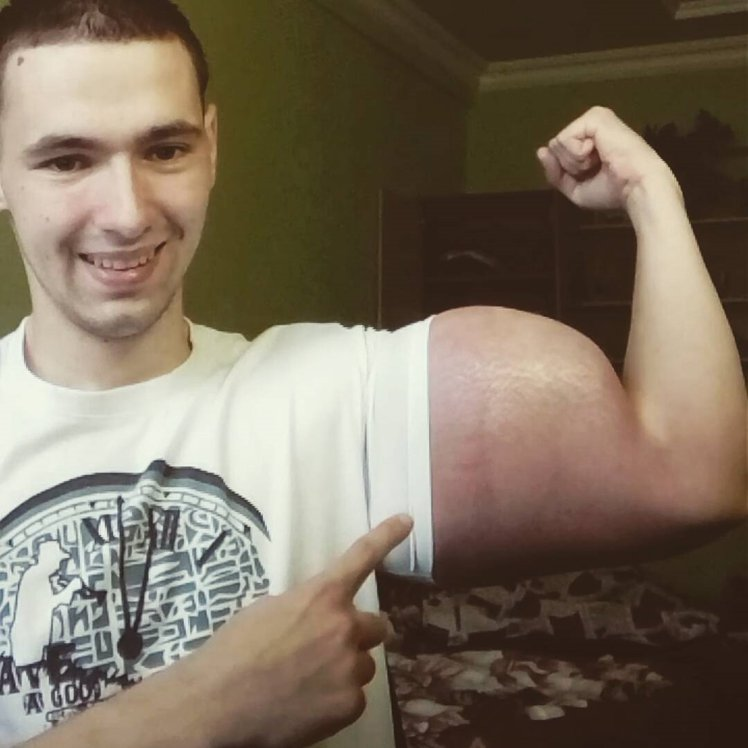 "Pic shows: Kirill Tereshin. A 21-year-old man with Popeye-like arms after injecting dangerous chemicals into them has been slammed by critics. Kirill Tereshin, 21, from the city of Pyatigorsk in south western Russia's Stavrolol Krai region, has been sharing pictures of his bizarre body shape on social media. He developed his huge 60 centimetre (24 inch) biceps by injecting site enhancement oil, commonly known as synthol, into his arms. Mr Tereshin is clearly proud of his biceps and triceps despite the fact that they are completely out of proportion with the rest of his body. He plans to continue with his risky regime, which also includes workouts, and hopes to one day break bodybuilding records. Mr Tereshin started injecting himself with synthol after leaving the army this summer and increased the size of his biceps by 26 centimetres (10 inches) in just 10 days. He began by injecting 250 ml into his biceps but found that would make them grow by no more than 3 cm (just over one inch). Mr Tereshin said: ""In order to reach such a size, you need to inject litres into your arms. ""I was doing it and getting a fever of up to 40 degrees, I was lying in bed, feeling like I was dying, but then it all turned out fine."" He added that his body weight had increased from 62 kilogrammes (9 st 11 lbs) to 68 kilogrammes (10 st 10 lbs) since he started the injections. Social media users have been expressing concern over the damage he could be doing to his health. Netizen 'glacier' said: ""He should be sent to psychiatric hospital for treatment"", while 'Tornado' added: ""This is awful. So stupid and ugly."" Doctors warn that synthol can cause pulmonary embolisms, nerve damage, infections, sclerosing lipogranuloma, stroke and oil-filled cysts or ulcers in the muscle. Despite this, many bodybuilders use it to enhance their muscles and it is not restricted, with many brands available on the internet. And although the oil increases the size of Mr Tereshin's arms, it g"