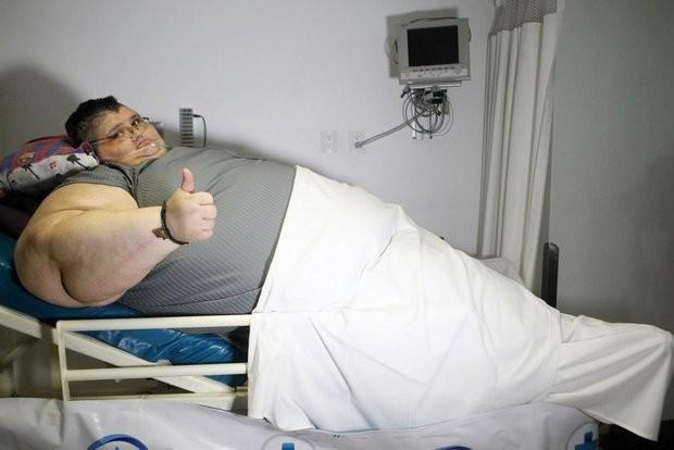 hombresobrepesocirugia5