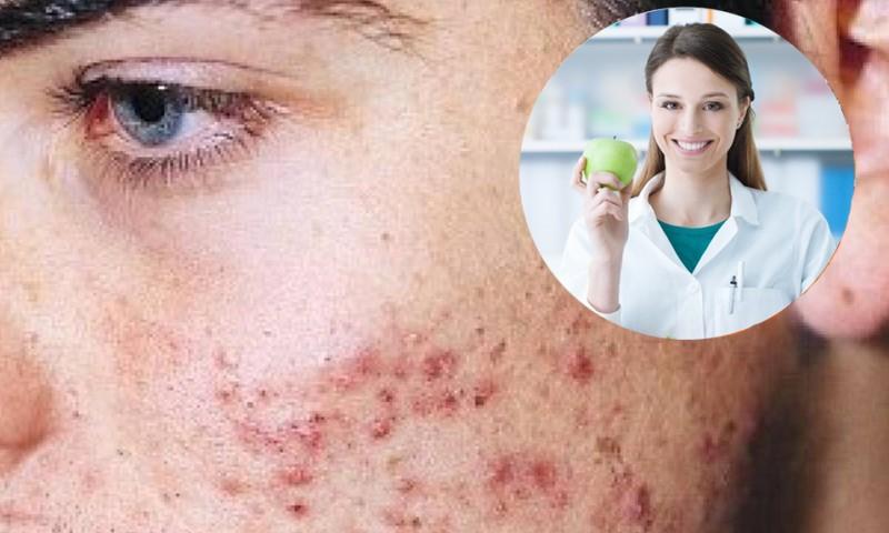 Que no comer para evitar acne