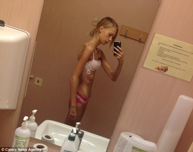 This girl suffered anorexia weighing 30 kg, now she is an athlete 4