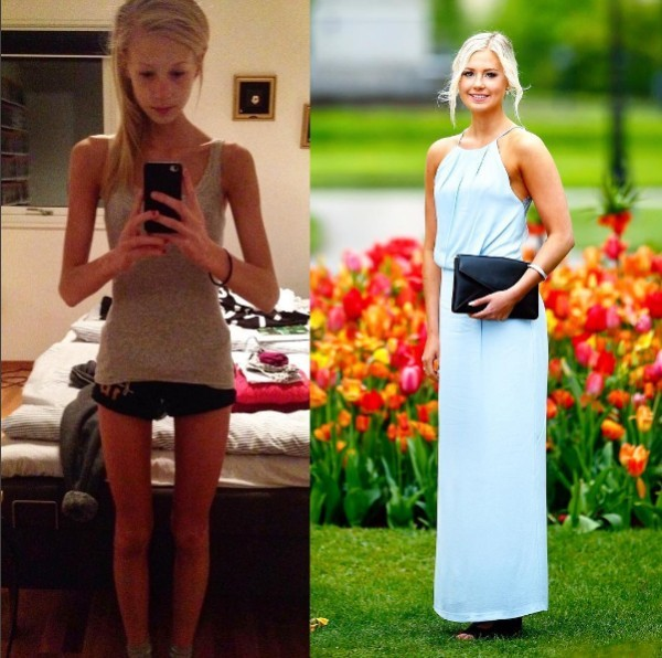 This girl suffered anorexia weighing 30 kg, now she is an athlete 3